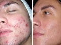 Acne in boys