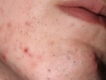 Acne on the face in women