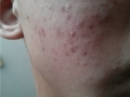 Acne on the skin - what to do if there are pimples