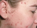 Acne on neck and cheeks