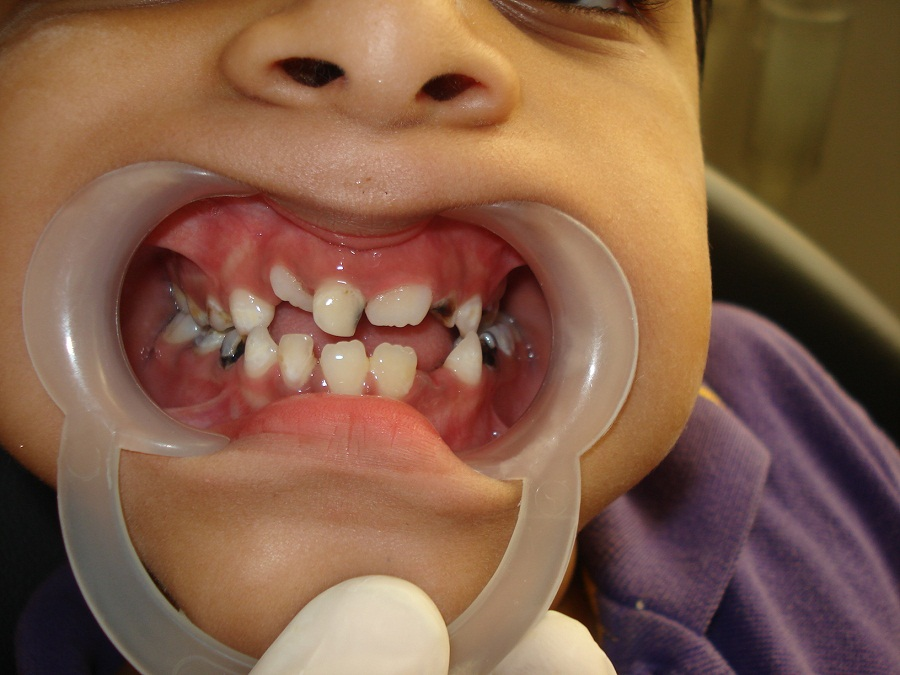 Severe tooth decay top reason for preschoolers' day ... |Decayed Toddler Teeth