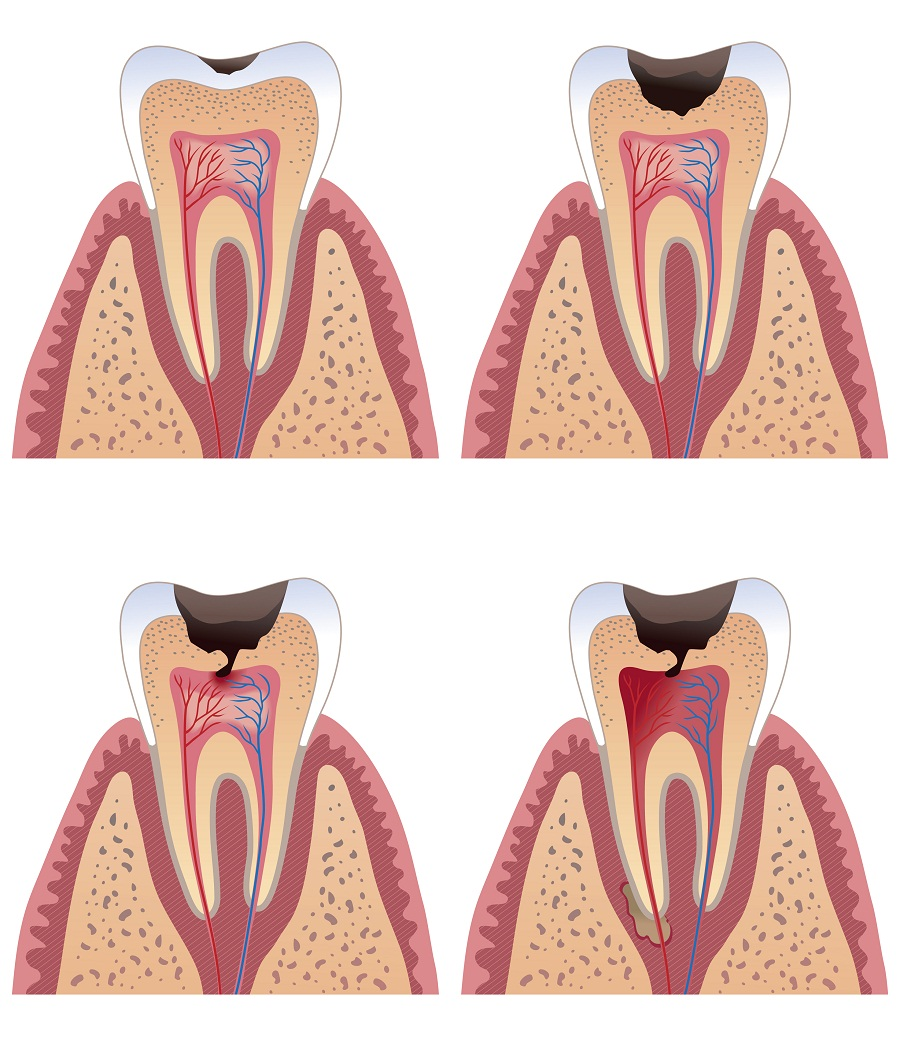 Dental Caries (Tooth Decay or Cavities) in children ...