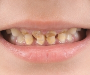 Caries the upper front teeth in a child