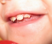 Tooth decay in infants