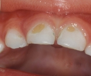 The appearance of dental caries in children
