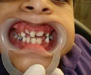 A severe form of tooth decay