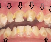 The caries of deciduous teeth
