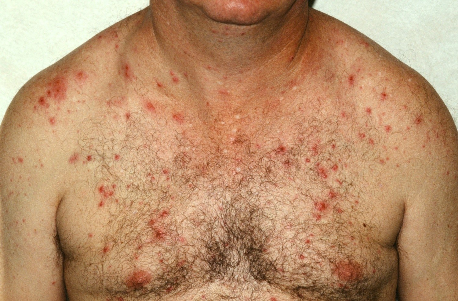 picture of folliculitis #10