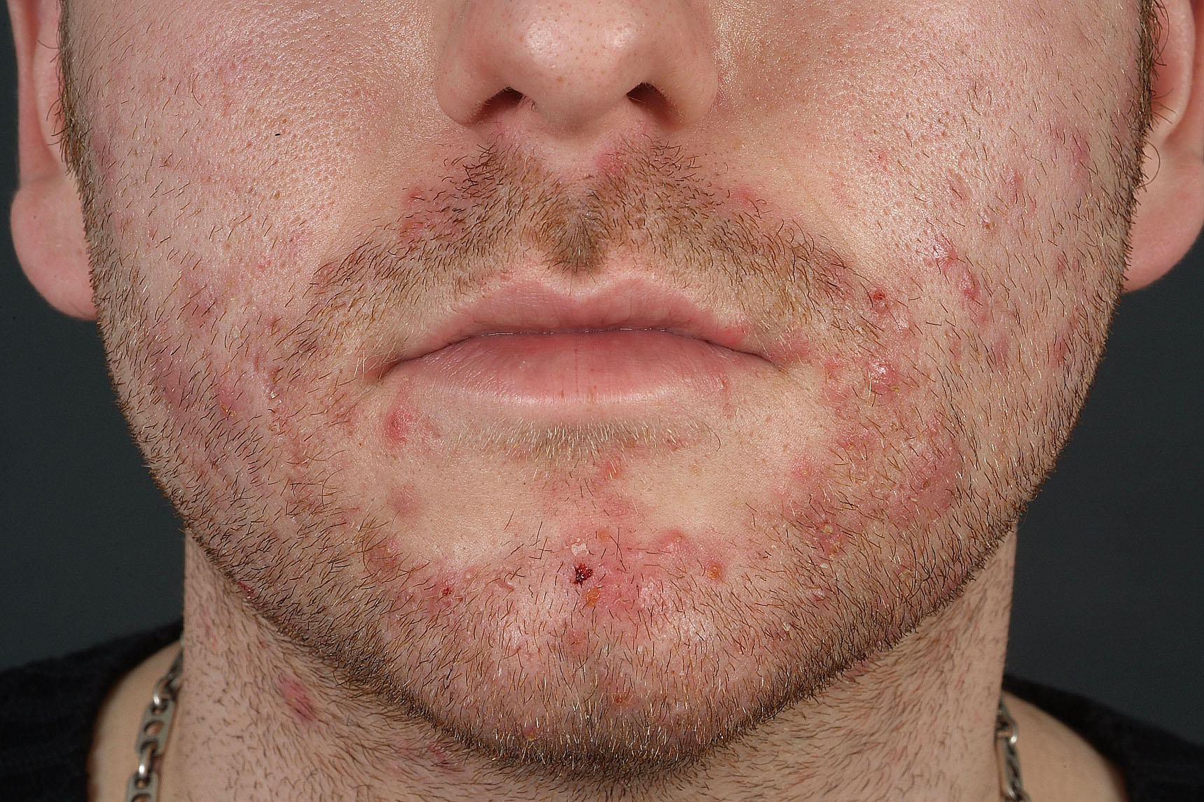 folliculitis caused by steroid cream