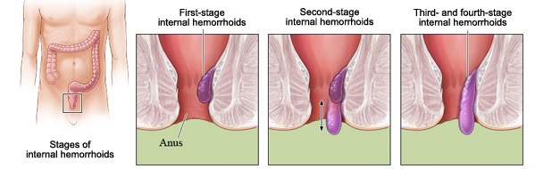 Hemorrhoids - symptoms and treatment of hemorrhoids ...