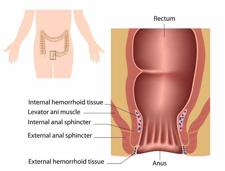 Hemorrhoids Symptoms And Treatment Of Hemorrhoids