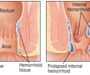 Hemorrhoids the sphincter muscles