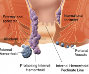 Prolapsing Internal Hemorrhoid