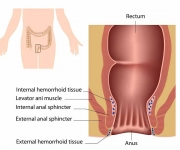 External hemorrhoid scar tissue