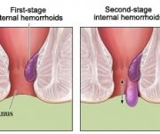 Stages of internal hemorrhoids