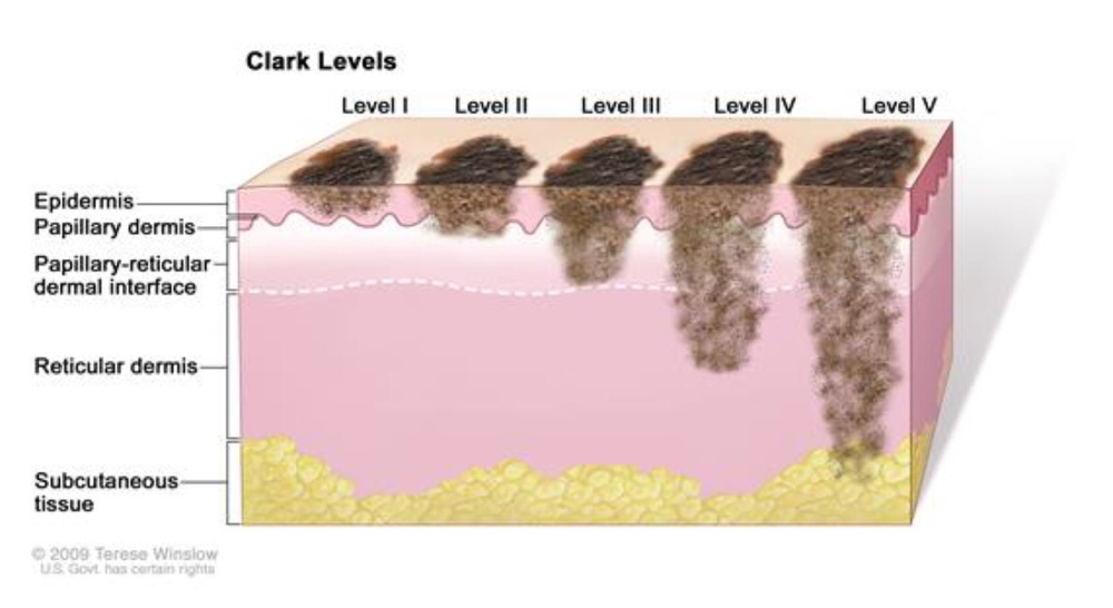 Does Melanoma Spread Rapidly? - Health Guide Info