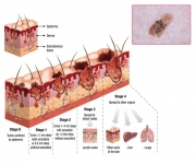 Skin Cancer Illustration