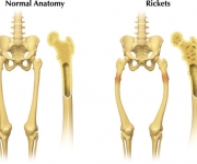 Normal vs Rickets