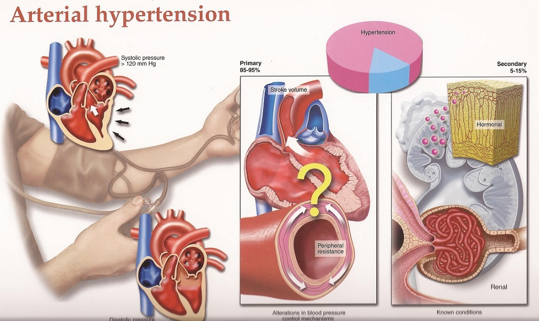 the causes signs and dangers of hypertension