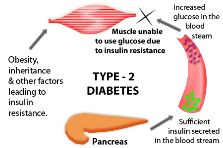 What other diseases can type 2 diabetes cause uti