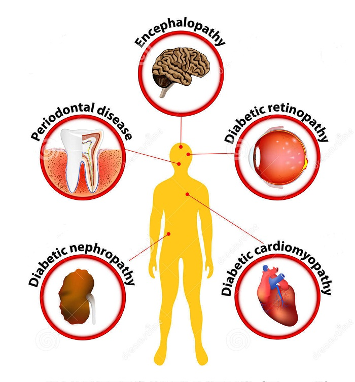 Diabetes - related complications and consequences   Health Care ...
