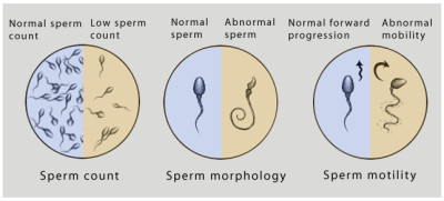 Male test for infertility