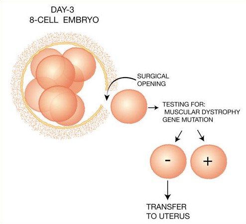 an introduction to the analysis of in vitro fertilization Get youtube red working find out why close introduction to fertility: in vitro fertilization procedure (ivf in vitro fertilization egg retrieval.