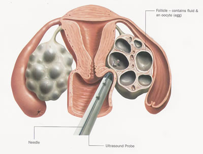 Stimulation of ovulation - metod 2