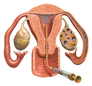 Stimulation of ovulation - metod 1