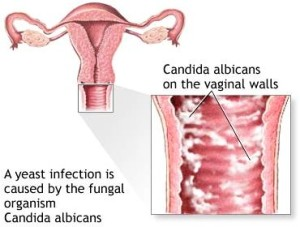 Diagnosis of a yeast infection (vaginal candidiasis) during pregnancy