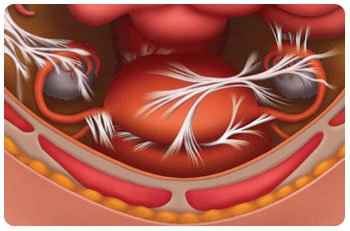 Adhesions after cesarean section