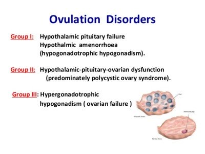 Why is disturbed ovulation