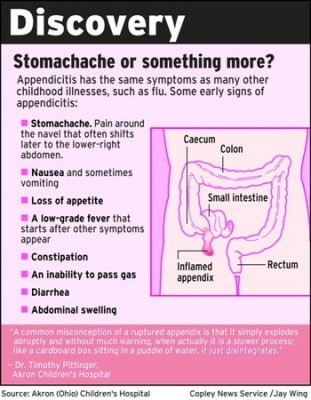 Appendicitis Symptoms and Diagnosis