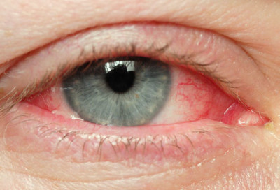 Complications of conjunctivitis in newborns