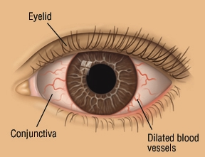 Symptoms of conjunctivitis in newborns