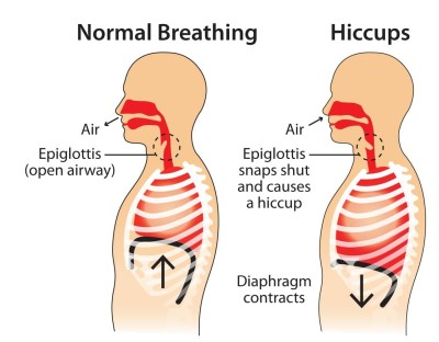 Symptoms of hiccups in newborns