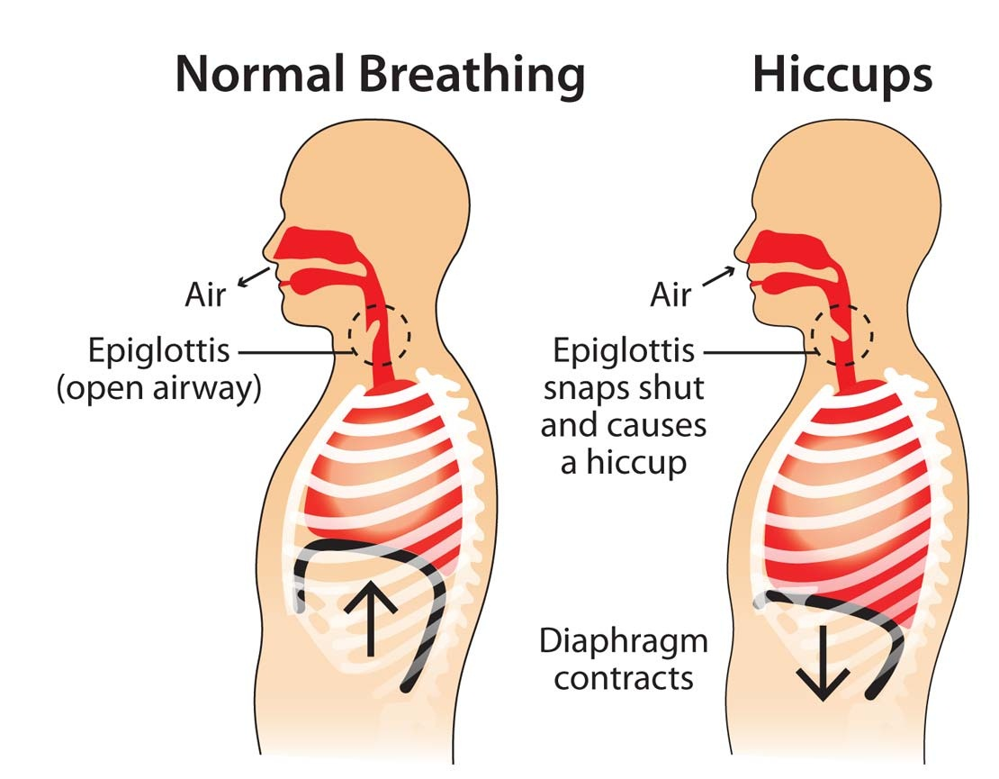 hiccups caused by steroids