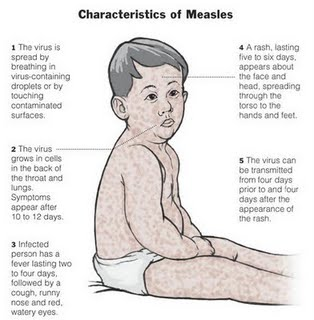 Symptoms, treatment of measles