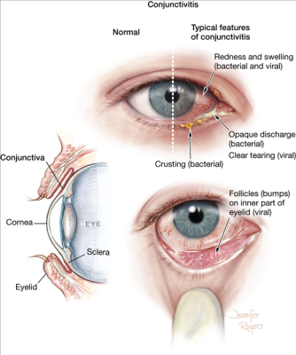 Treatment of conjunctivitis