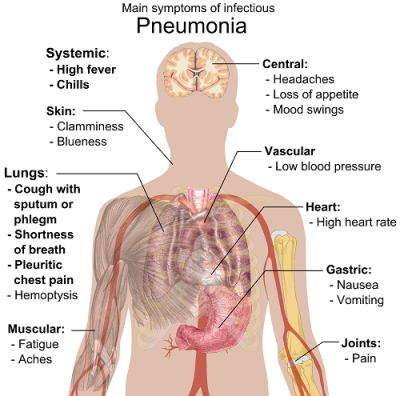 Treatment of pneumonia in children
