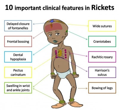 Treatment of rickets in children