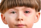 Treatment of conjunctivitis in children