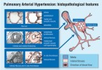 Arterial hypertension - causes, symptoms and treatment