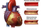 Atherosclerosis - causes, symptoms and treatment