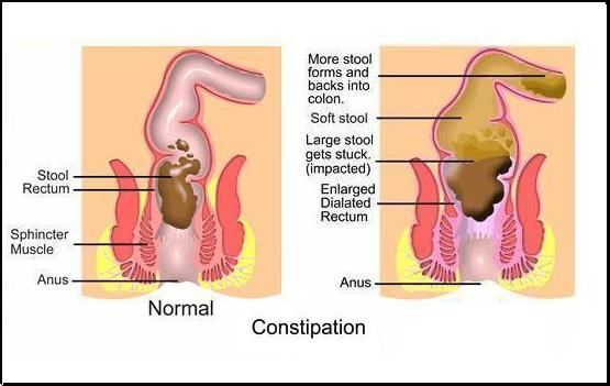 Constipation anal pain afterwards
