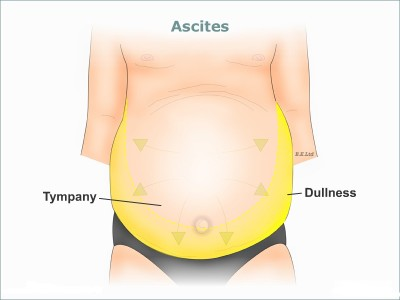 Causes of ascites