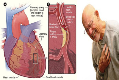 Causes of atherosclerosis