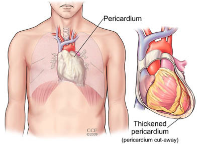 Pericarditis Causes Symptoms And Treatment Health