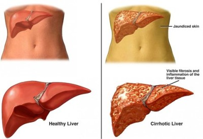 Cirrhosis of the liver treatment
