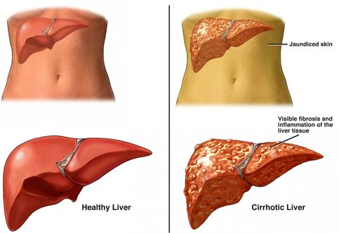 liver cirrhosis - causes, symptoms and treatment | health care, Human Body